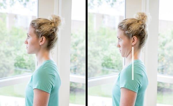 تمرین چانه مناسب برای آرتروز گردن