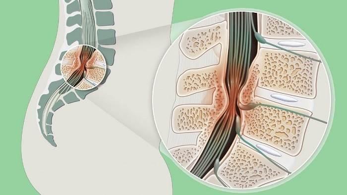 5 دلیل اصلی تنگی کانال نخاعی
